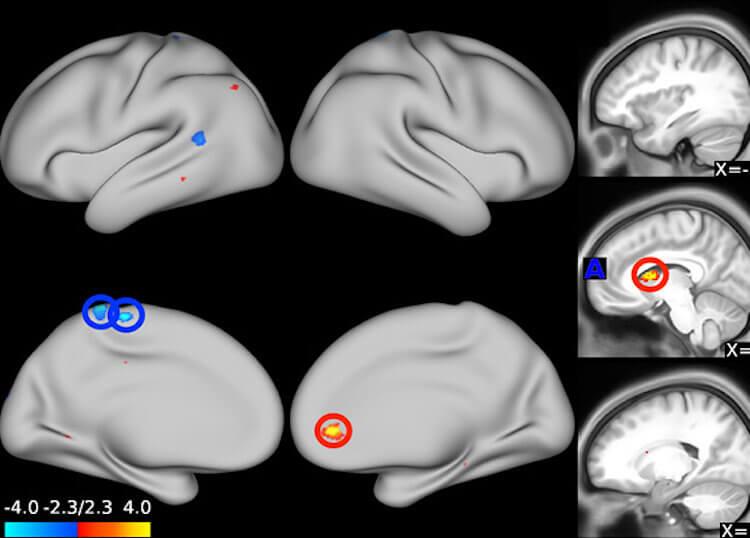 Как антидепрессанты влияют на мозг человека