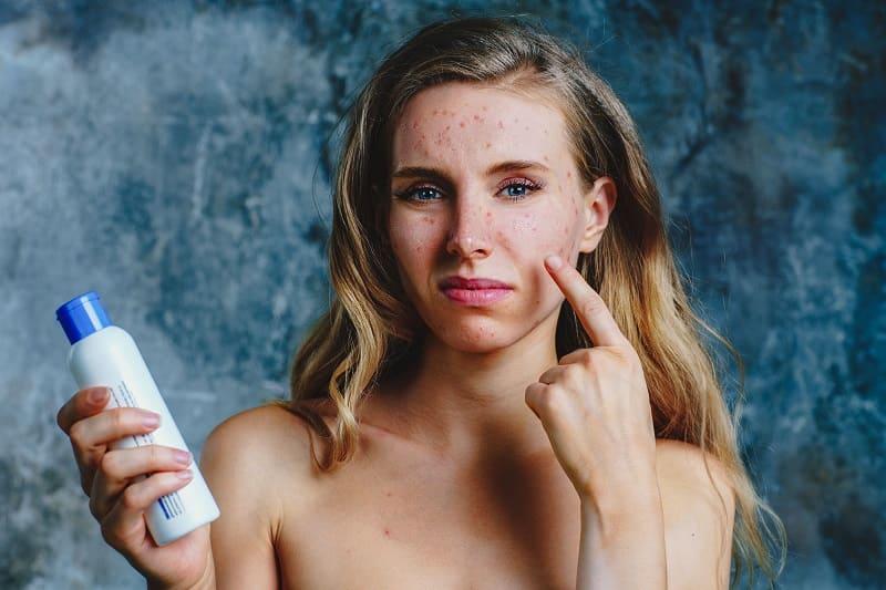 Аллергия на косметику. Что делать?