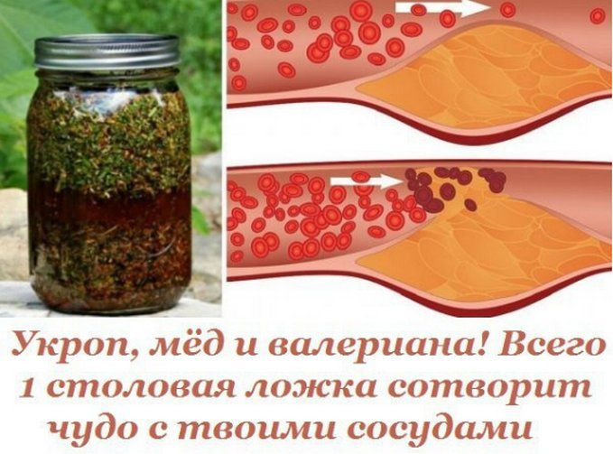 Укроп, мед и валериана! Всего 1 столовая ложка сотворит чудо с твоими сосудами