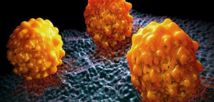 Остановить развитие метастаз могут помочь средства от ожирения