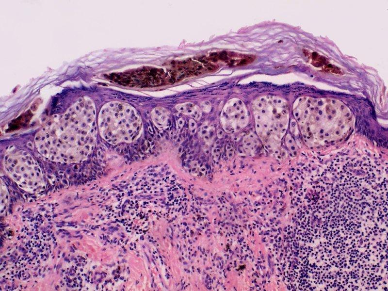 Мифы о раке кожи