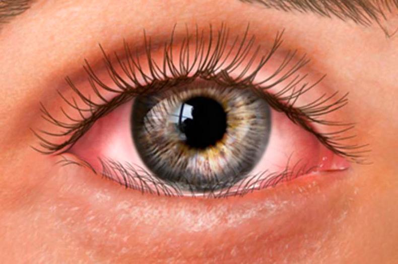Какие болезни выдают глаза