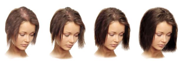 Выпадают волосы и плохо растут? Вы просто ещё не пробовали этот рецепт! 100% результат!