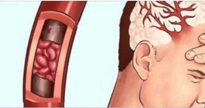 Дефицит магния: симптомы, диагноз и как его принимать