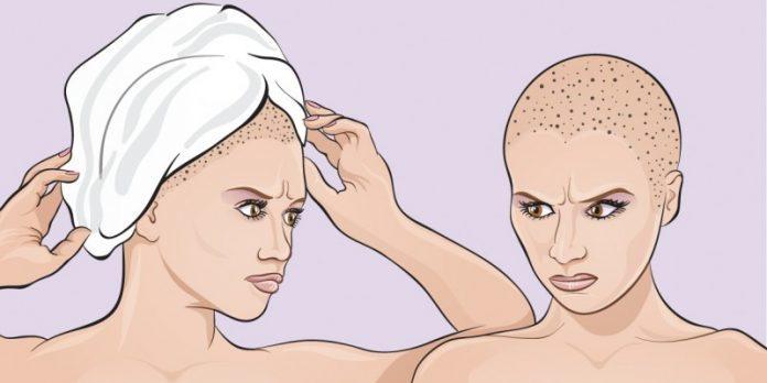 Оборачиваете волосы полотенцем, когда выходите из душа? Вы совершаете большую ошибку!