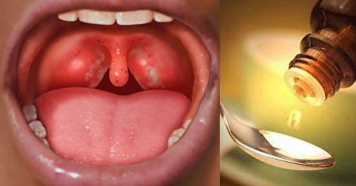 У вас часто болит горло, пропадает голос и мучает кашель? Вот как надо избавиться от этих проблем за ночь, просто и легко!