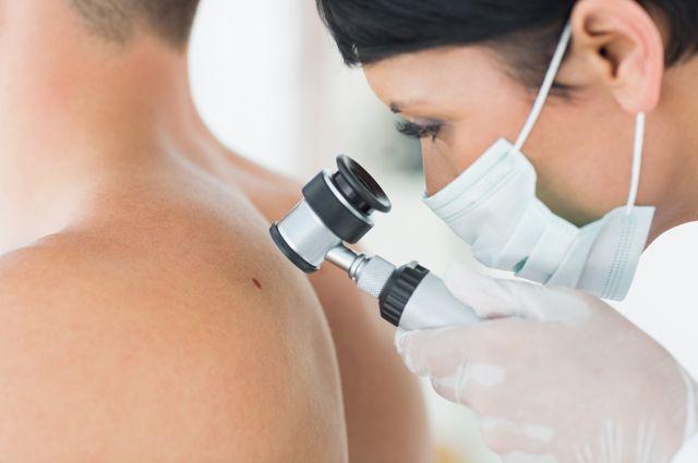Как защититься от меланомы