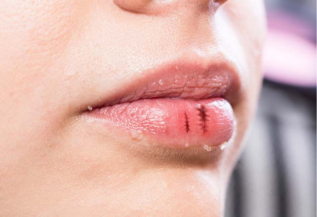 Поврежденные губы — причины, домашние средства, меры предосторожности