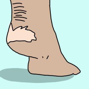 Лечим болезни ног ополаскивателем для рта. Невероятно, но работает!