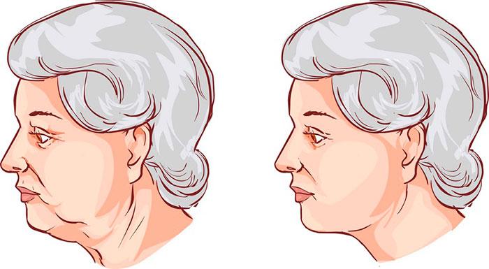 Теперь в свои 50 выгляжу на 35! Секрет прост: наношу самодельную золотую маску и промачиваю лицо обычным