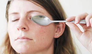 Как быстро вывести синяк под глазом