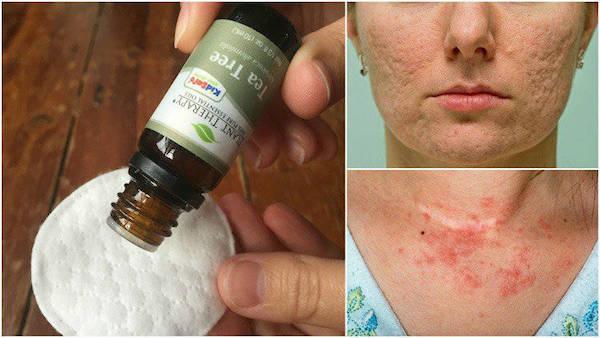 10 причин, почему вам нужно держать масло чайного дерева в вашем доме. Удивительные преимущества для кожи и здоровья!
