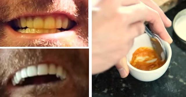 Этот мужчина показал до смешного простой трюк для отбеливания зубов. С секретным ингредиентом! (фото, видео)