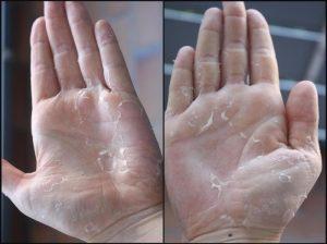 Как избавиться от шелушения кожи на ладонях