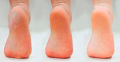Применяйте 1 раз в неделю и ваши ноги станут здоровыми, а кожа стоп гладкой и шелковистой без трещин и натоптышей!