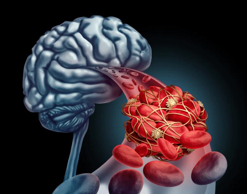Улучшаем кровообращения мозга: комплекс из трех упражнений