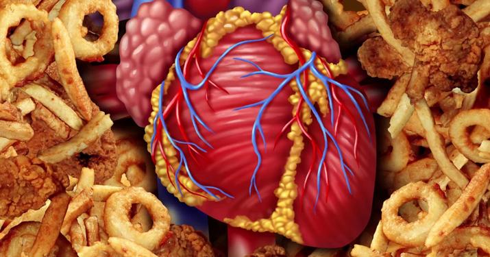 Я — кардиолог! Вот 9 продуктов, которые я запрещаю есть своим близким!