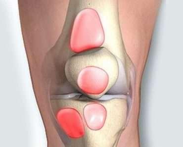 Коленный бурсит: симптомы, причины, диагностика и домашние средства для устранения